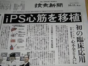 読売新聞 iPS誤報